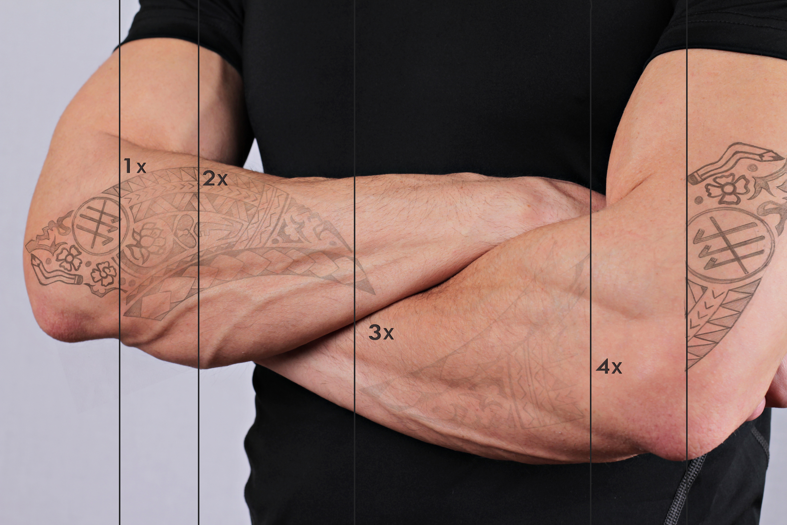 evolucion de la eliminacion de tatuajes por sesiones