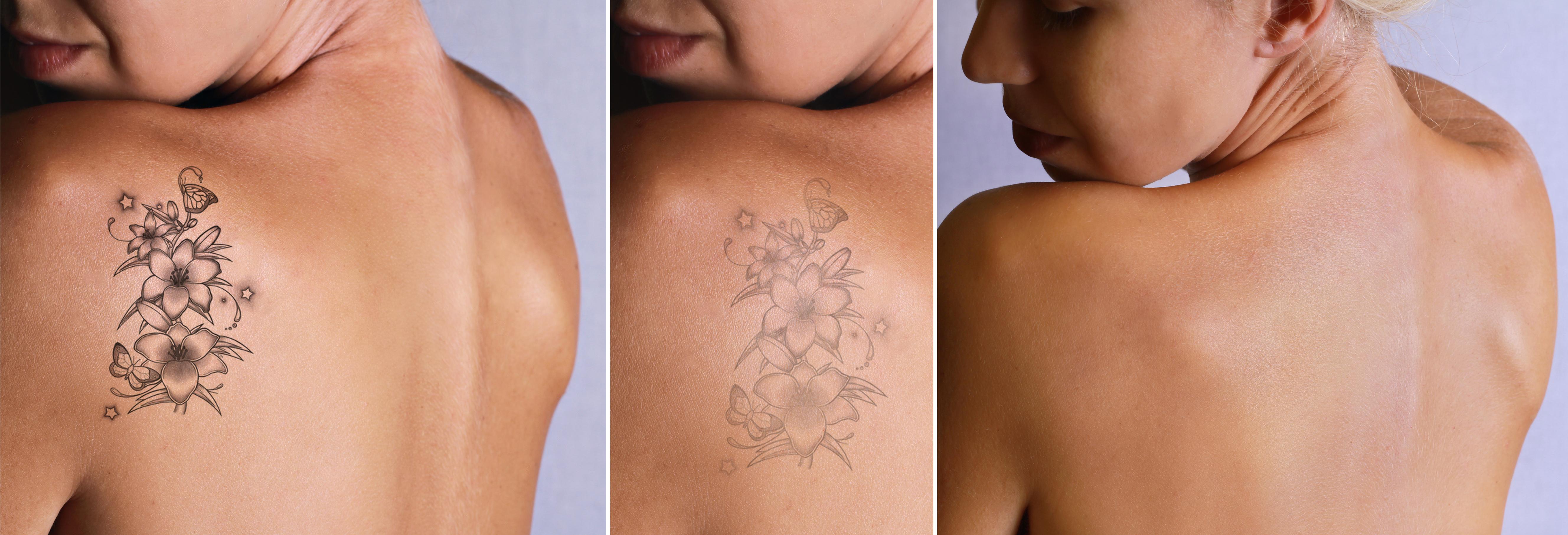 fases de la eliminacion de tatuajes